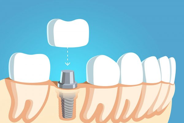 Dental implant diagram showing how supplemental procedures will support implants and crowns.