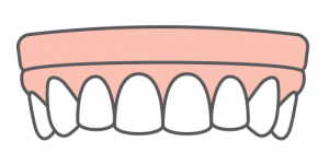 illustration of implant denture teeth