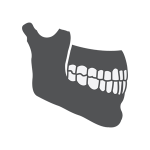 The side of a jawbone showing the effects of tooth loss on your health