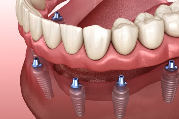 Graphic of implant supported dentures